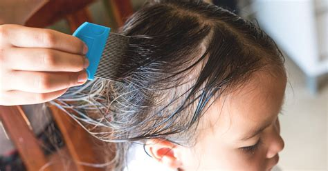 What Does Head Lice Look Like in Hair