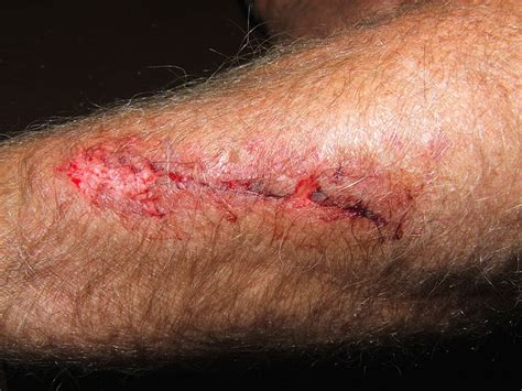 wound infected pus   signs