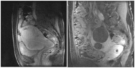 Uterine Fibroids & Uterine Artery Embolization - Thomas ...