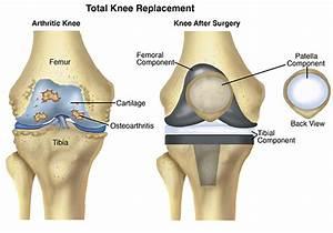 Total Knee Replacement  Arthroplasty