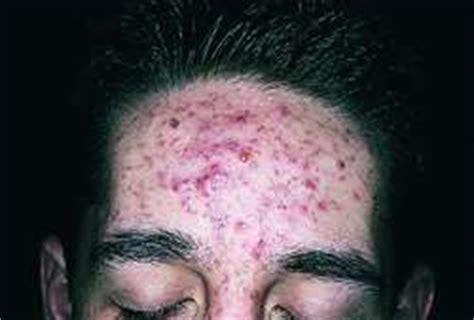 acne vulgaris definition  acne vulgaris  medical