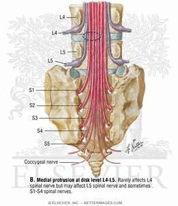 Spinal Nerves  Lumbar