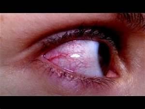 Suspended for Bloodshot Eyes - YouTube