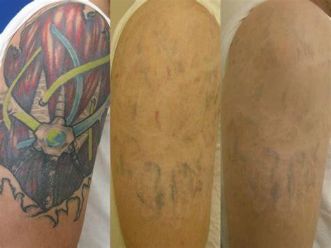tattoo removal washington dc center  laser surgery