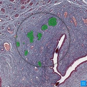 Submandibular Gland  Anatomy And Clinical Aspects