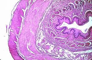 Esophagus & Stomach Color Images