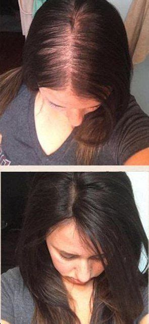 dark brown hair toppers  women  thinning hair