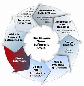 Symptoms Of Severe Sinus Blockage