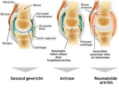 Psoriasis artritis voeding