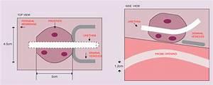 Tissue Equivalent Ultrasound Prostate Phantom