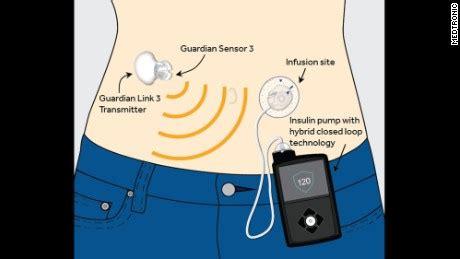artificial pancreas  type  diabetes wins fda