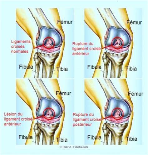 douleur a l interieur du genou douleur au genou et gonflement page 4 kinesitherapie24