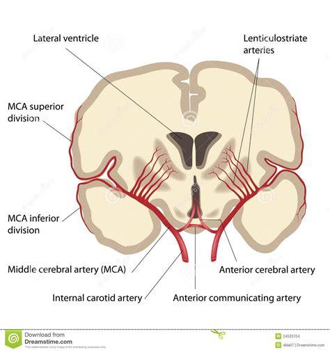 aneurisma carotide interna 233 ria cerebral m 233 dia imagens de stock imagem 24533704