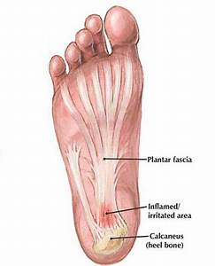 Plantar Fasciitis Causes  Symptoms  And Management