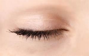 Psoriasis on eyelids natural treatment
