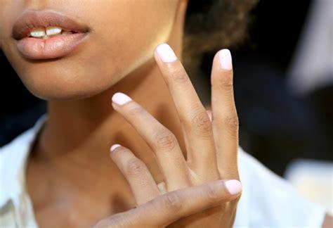 Ongles jaunes quels sont les causes et traitements ?