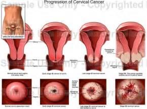 Gambar Rahim Wanita Normal Correct Section Cancer Caused By Sex