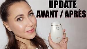 Newa Avant Apres : appareil anti rides visage comparatif avant apr s avec newa visage collag ne ~ Maxctalentgroup.com Avis de Voitures
