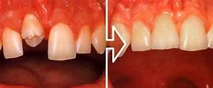 Tooth Autotransplantation Symposium  U2013 Dental Trauma Guide