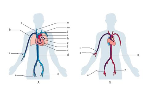 vasi arteriosi anomalie dei vasi coronari