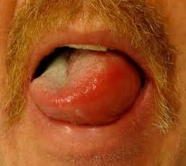 Skin care - Hives and angioedema - the dynamic natural skin care  Hives Angioedema