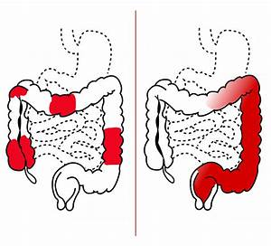 Crohn Disease Symptoms  Causes  U0026 Treatment