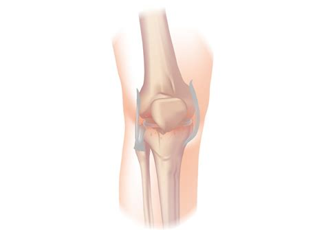 What Is Osteoarthritis Of The Knee, And How Do You Treat It?