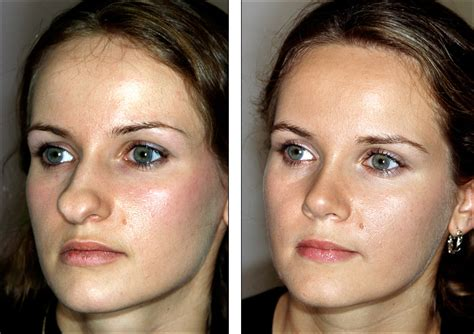 si鑒e v駘o avant bulbous tip rhinoplasty before and after f f info 2017