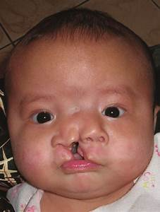 The Patient At 3 Months Old  Showing Nasal Duplication With Left