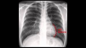 Chest X-ray  Cxr  Analysis In A Nutshell