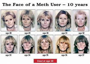 17 best ideas about Meth Mouth on Pinterest | Meth ...