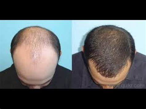Thinning Hair Rogaine Results