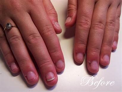 Nails Acrylic Clear Overlay Tip Gel Transformation