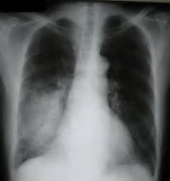 Activity Intolerance - NCP Pneumonia - Nanda Books Pneumonia