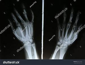 Xray Image Broken Forearm Ap Lateral Stock Photo 381514726 ...