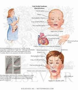 Fetal Alcohol Syndrome – Pictures, Symptoms, Statistics ...