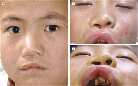 Cleft Lippalate Deformities In Western China