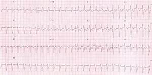 Surface 12 Lead Ecg During Fascicular Vt Showing A Right