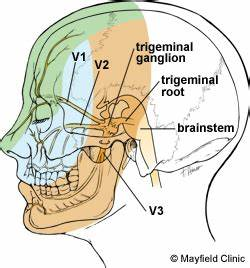 pain relief for trigeminal neuralgia