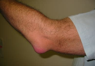 Bursitis - Olecranon. Causes, symptoms, treatment Bursitis ...