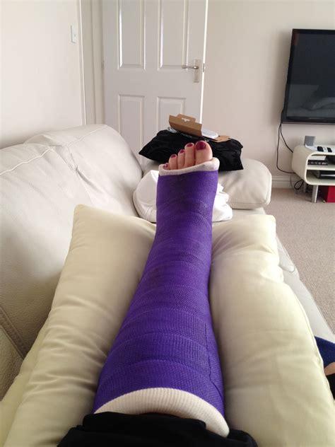 cornwall  crutches trimalleolar fracture purple