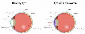 Glaucoma: What Seniors Should Know - Home Care Blog by CarefectHome ...  Glaucoma Eyes and Vision