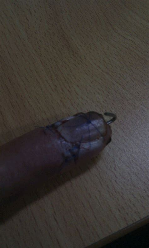 Infected Fingernail Bed by Nail Bed Infection In Dogs