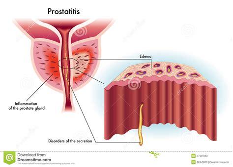home 3d cuisine prostatitis royalty free stock photography image 37997967