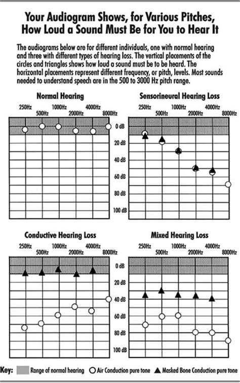 audiogram audiology hearing aids auditory processing