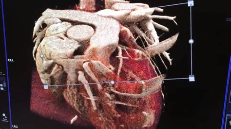 video realistic cinematic reconstruction   heart ct