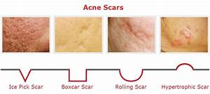 How To Get Rid Of Acne Scars   Tested Creams That Work