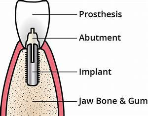 Components Of A Dental Implant