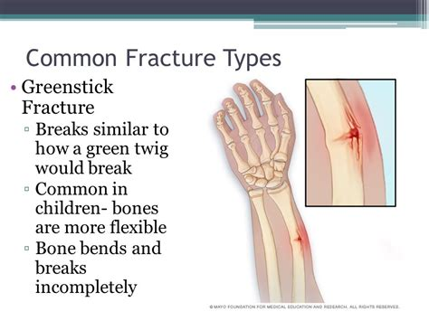 Bone Fractures Anatomy & Physiology.