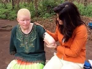 coupe de cheveux fillette massacres et mutilations d 39 albinos en tanzanie et au burundi agoravox le média citoyen